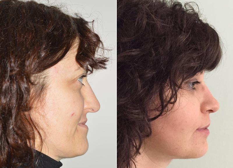 dieta liquida dopo chirurgia della mascella