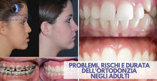 Problemi, rischi e durata dell'ortodonzia negli adulti