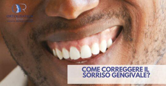 Come risolvere il sorriso gengivale
