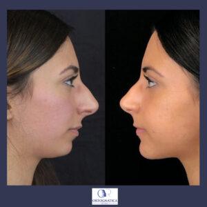 Beuaty-full chin