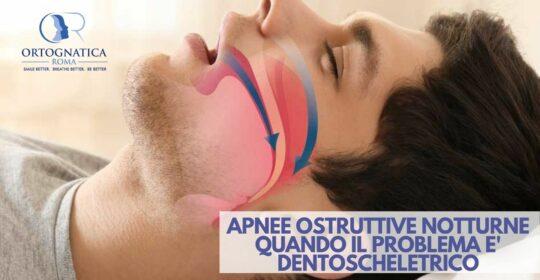 Apnee ostruttive del sonno: quando il problema è di natura dentoscheletrica