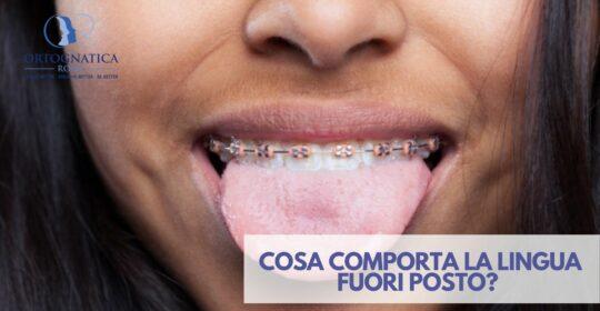 Cosa comporta la lingua fuori posto?