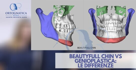 Beauty-Full-Chin Vs Genioplastica: le differenze