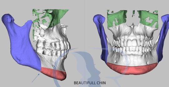 Beauty-full Chin