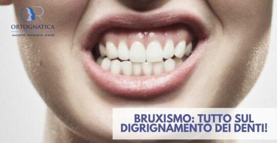 Bruxismo: tutto sul digrignamento dei denti!