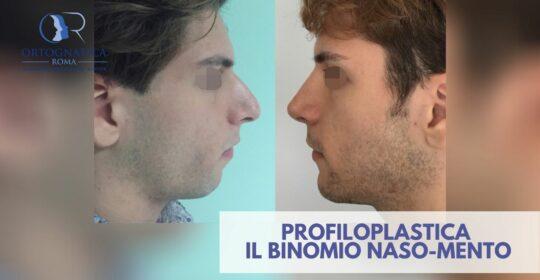 Profiloplastica: l'importanza del binomio naso/mento