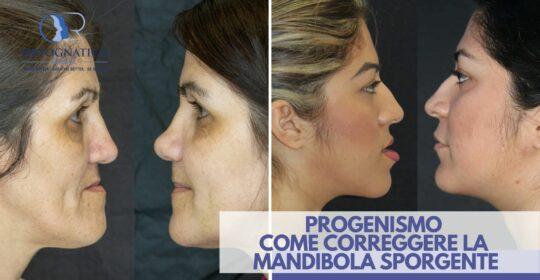 Progenismo: ecco come correggere la mandibola sporgente