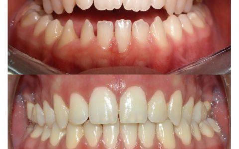Ortodonzia pre chirurgica caso 3