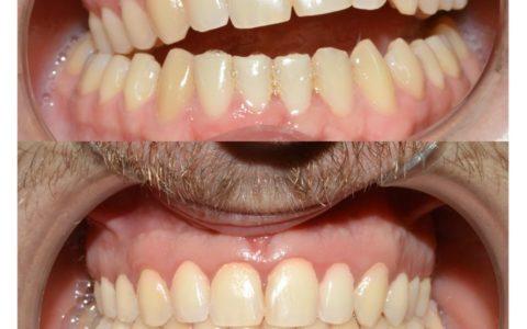 Ortodonzia pre chirurgica caso 2
