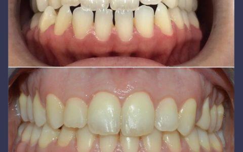 Ortodonzia pre chirurgica caso 4