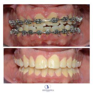Ortodonzia pre chirurgica caso 5