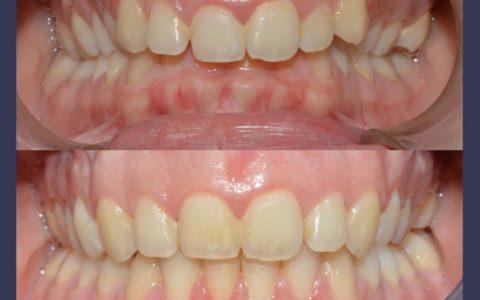Ortodonzia pre chirurgica caso 6
