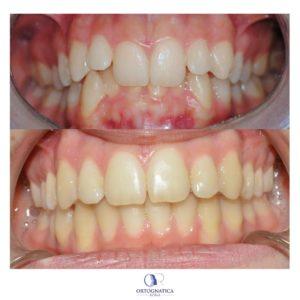 Ortodonzia pre chirurgica caso 7