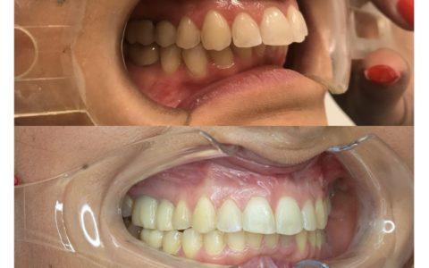 Ortodonzia pre chirurgica caso 8