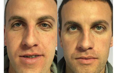 Asimmetria facciale