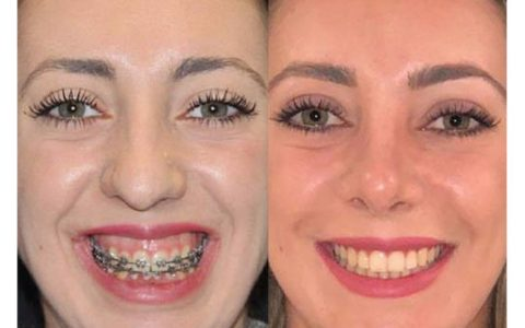 Ortodonzia pre chirurgica caso 9