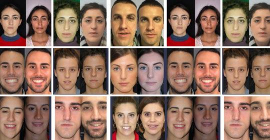 Asimmetria facciale: quando il viso risulta poco armonico