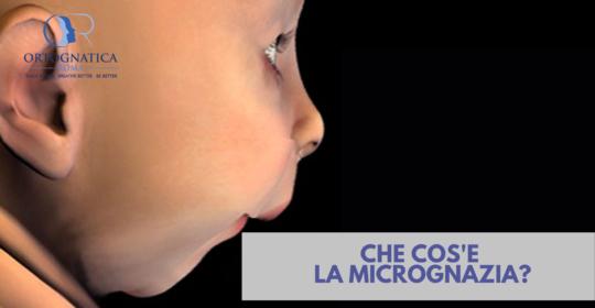 Cos'è la micrognazia