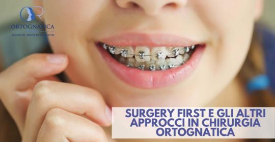 Surgery first e gli altri approcci di ortodonzia in chirurgia ortognatica