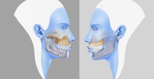 chirurgia monomascellare