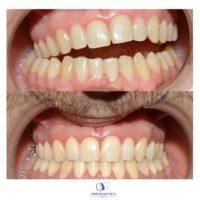 Alterazioni dell occlusione non correggibili con ortodonzia