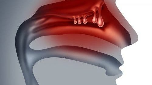 Poliposi naso-sinusale