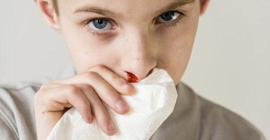 Epitassi nasale