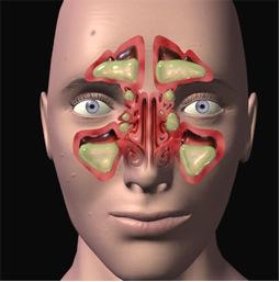 Sindrome rino-sinuso-bronchiale