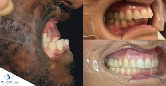 Ortodonzia pre-chirurgica: la decompensazione ortodontica