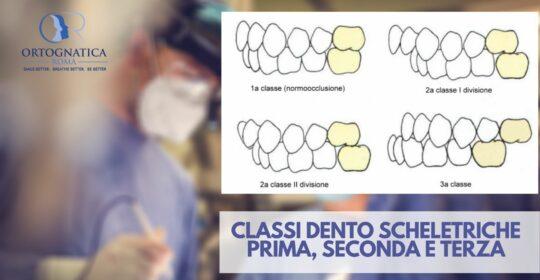 Le classi dento scheletriche: prima, seconda e terza classe