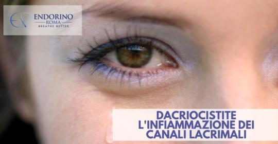 La Dacriocistite: l'infiammazione dei canali lacrimali