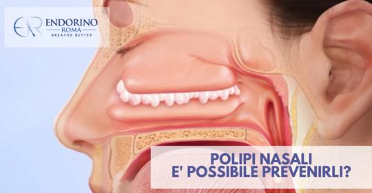 Polipi Nasali: è possibile prevenirli?