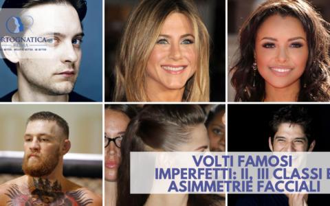Volti famosi imperfetti: mento retruso, mento avanti e asimmetrie