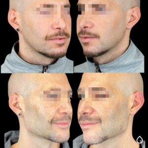 contorno mandibolare