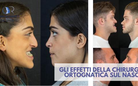 Gli effetti della chirurgia ortognatica sul naso