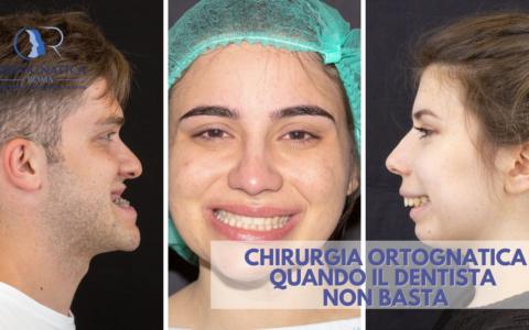 Chirurgia Ortognatica: quando il dentista non basta